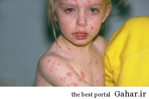26893 مرگ بار ترین بیماریها