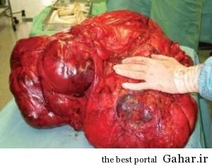 45645645646 300x236 خارج کردن یک تومور 12کیلویی از شکم یک زن !!!