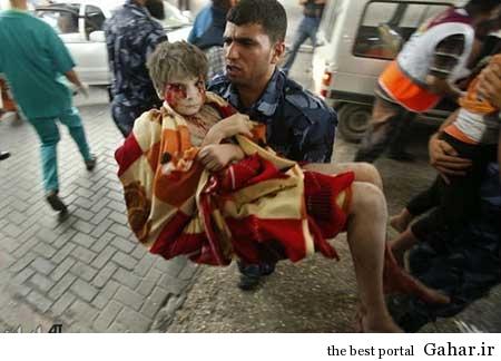 9304 6m390 کودکان غزه غرق در خون / عکس (18+)
