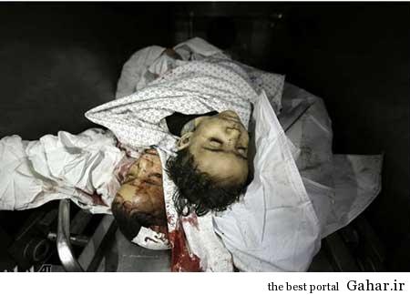 9304 6m404 کودکان غزه غرق در خون / عکس (18+)