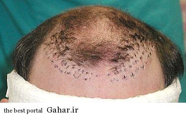 16334 606 فریب تبلیغات کاذب کاشت مو را نخورید!