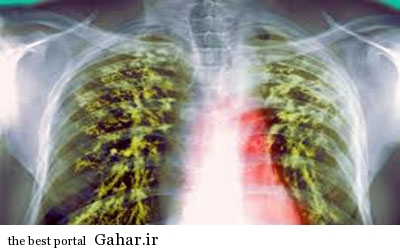 IMG20463383 شیوه نوین تشخیص بیماری