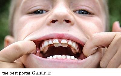 IMG11420425 نکات بهداشتی دهان و دندان