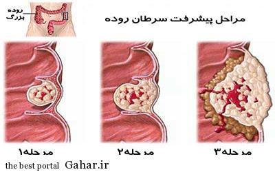 IMG22093194 دانستنی پزشکی سرطان روده
