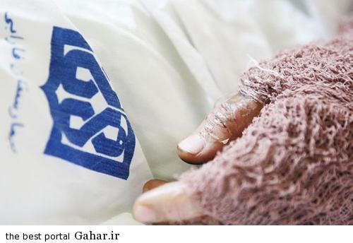 amf1h5b3bf8s09s9c58 گفتگو با سیما افشاری قربانی اسید پاشی در دهدشت / عکس