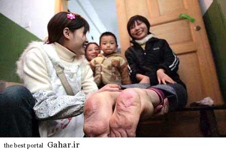 ca00b8df07 زن اهل چین با پاهای برعکس