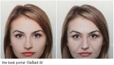 112 تاثیر استرس بر چهره افراد