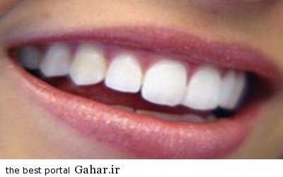 IMG19555284 خوراکی هایی برای سفید ماندن دندان