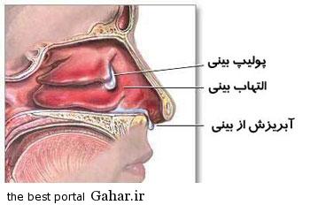 بینی علل و درمان گرفتگی بینی