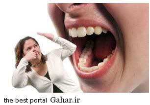 h021 علل بوی بد دهان و درمان آن