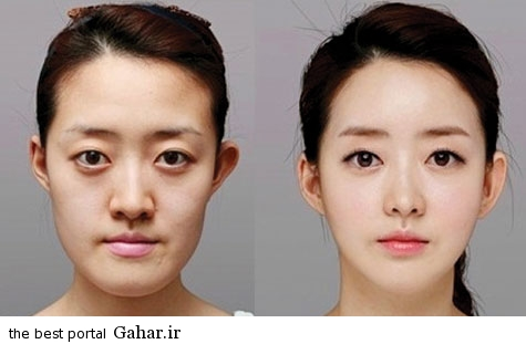 عمل زیبایی فک و صورت