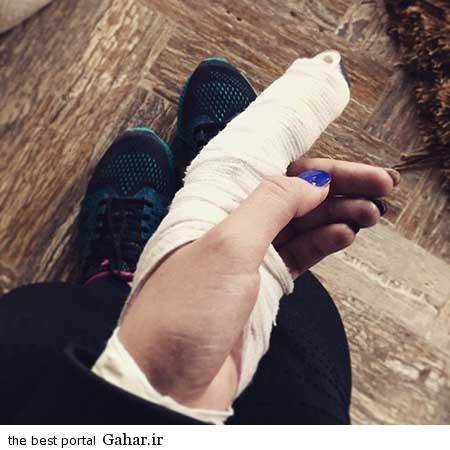 Parinaz Izadyar 2 جزییات مجروح شدن پریناز ایزدیار