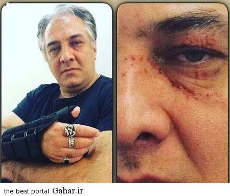 iraj ایرج نوذری دچار حادثه شد + عکس