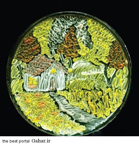 microscop 11 عکس های زیبا و شگفت انگیز از میکروب ها