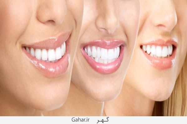 dandan شخصیت شناسی از روی دندان هایتان