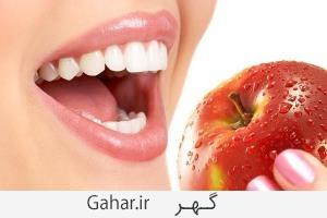 teth سفید کردن دندان ها با 6 راه طبیعی و خانگی
