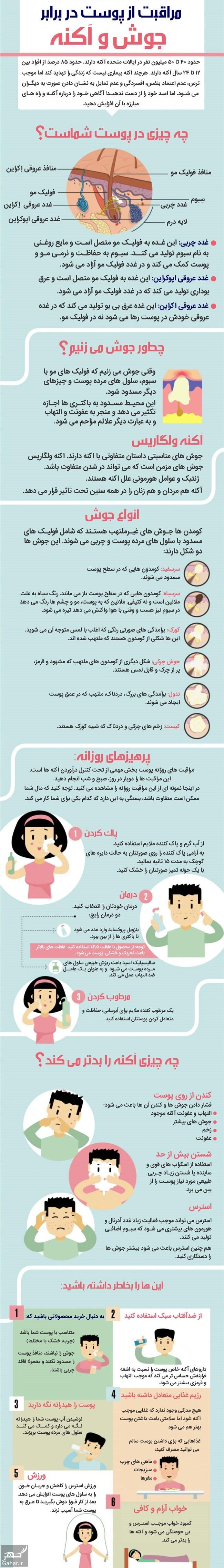 679237 Gahar ir سریعترین درمان جوش صورت + اینفوگرافی