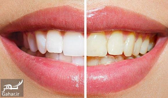 647023 Gahar ir روشهای مختلف زیباسازی و سفید کردن دندان + مزایا و معایب