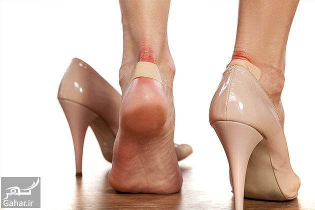 085816 Gahar ir درمان تاول پا
