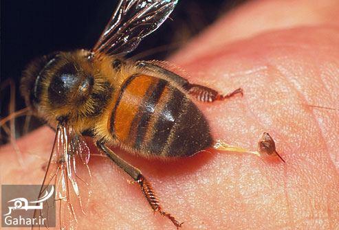 665558 Gahar ir درمان زنبورزدگي + راههای درمان نیش زنبور