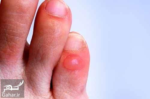 761422 Gahar ir درمان تاول پا