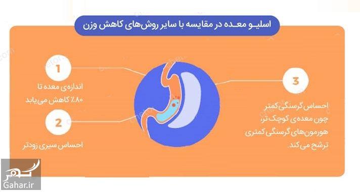 925269 Gahar ir هزینه عمل اسلیو معده با بیمه تامین اجتماعی