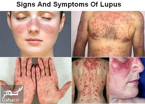 104905 Gahar ir علائم بیماری لوپوس