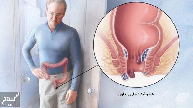 817172 Gahar ir درمان بواسیر بیچشک