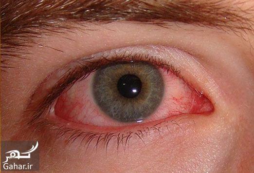 084726 Gahar ir درمان برق گرفتگی چشم