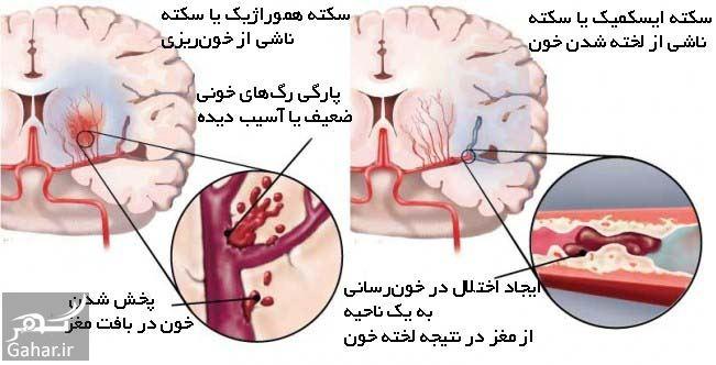 درمان سکته مغزی خفیف, جدید 1400 -گهر