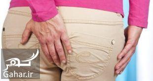 837509 Gahar ir درمان بواسیر در زنان