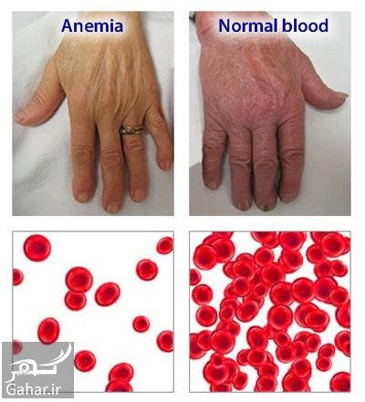 839844 Gahar ir علایم کم خونی شدید چیست؟