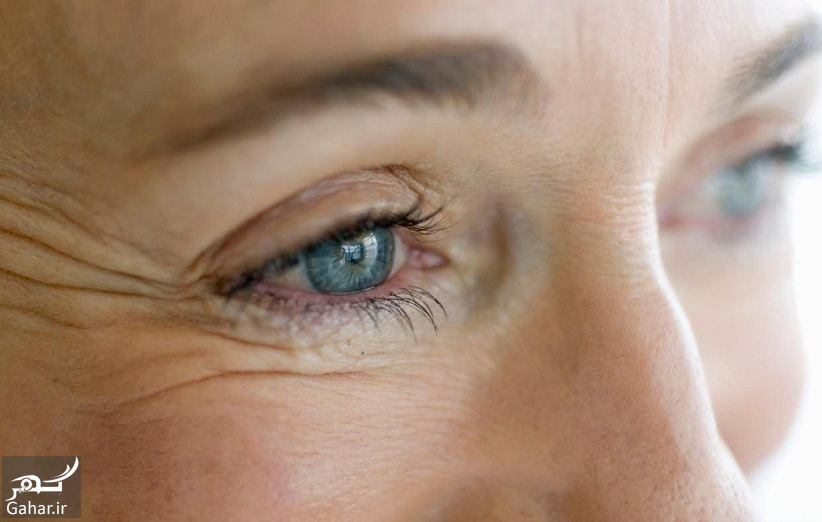067922 Gahar ir درمان قطعی چروک دور چشم