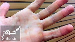 178237 Gahar ir درمان میخچه دست