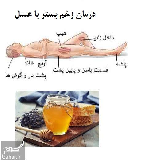 453096 Gahar ir درمان زخم بستر در سالمندان با عسل و طب سنتی