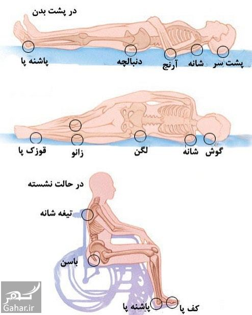 966992 Gahar ir درمان زخم بستر در سالمندان با عسل و طب سنتی