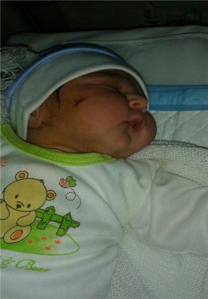 1464220361 اشتباه فجیع دکتر و برخورد تیغ جراحی با صورت نوزاد ؛ عکس