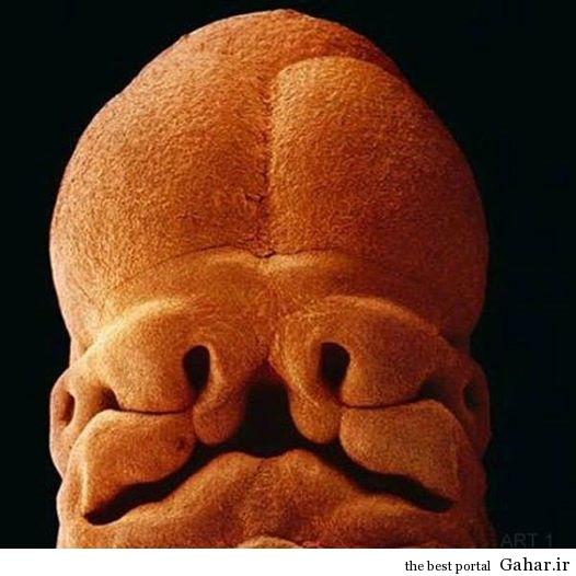 عکس فوق العاده از چهره یک جنین, جدید 1400 -گهر