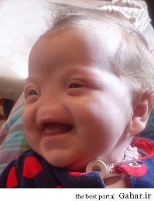 عکسی جالب از دختر بدون بینی !, جدید 1400 -گهر