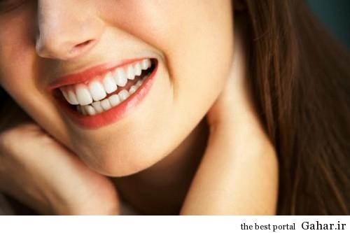 نکاتی برای داشتن دندان های سپید و زیبا, جدید 1400 -گهر