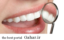 پودر و خمیرهای جرم گیری دندانها تهدیدی برای سلامت آن ها, جدید 1400 -گهر