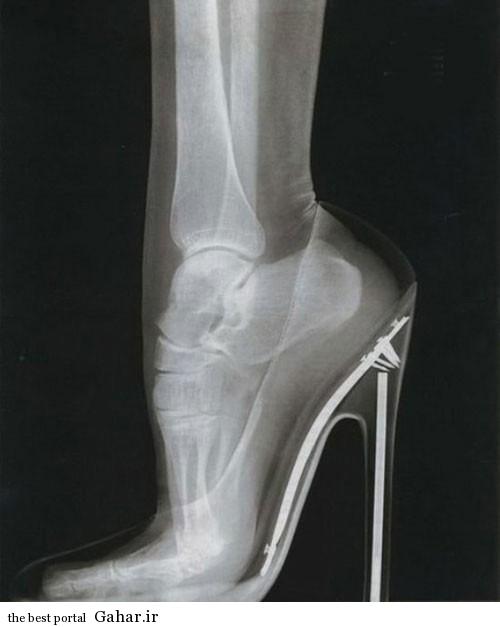 راههای پیشگیری از درد پا ناشی از کفش پاشنه بلند, جدید 1400 -گهر