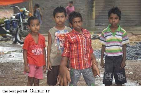 پسر بچه هندی که دستانش دو برابر سرش است / عکس, جدید 1400 -گهر