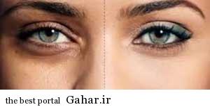 چرا اطراف چشم سیاه می شود؟, جدید 1400 -گهر