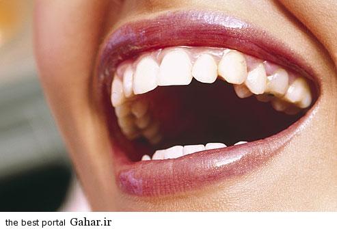 getty rm photo of woman smiling1 راه های ساده برای داشتن دندان های سفید و زیبا