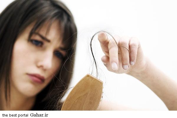 350x233x8202 936.jpg.pagespeed.ic .Q0 kfzj0pe عواملی که باعث ریزش مو می شوند را بشناسید
