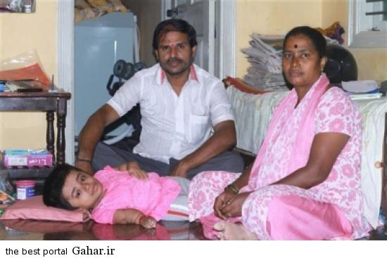alalam 635643869522569730 25f 4x3 عکس های دختر هندی 19 ساله در بدن دختر 2 ساله