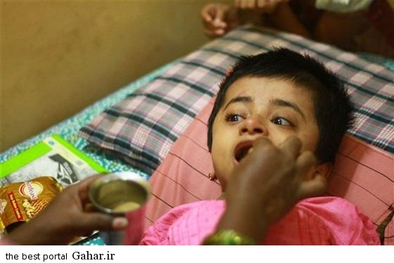 alalam 635643869789749730 25f 4x3 عکس های دختر هندی 19 ساله در بدن دختر 2 ساله