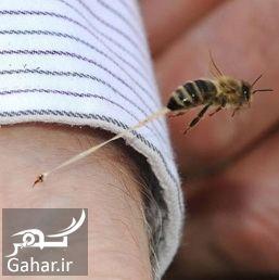 درمان زنبورزدگی + راههای درمان نیش زنبور, جدید 1400 -گهر