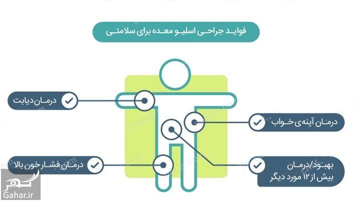 هزینه عمل اسلیو معده با بیمه تامین اجتماعی, جدید 1400 -گهر